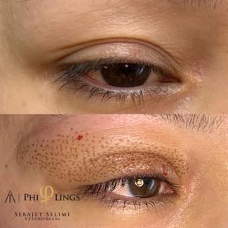 Øyelokk løft
