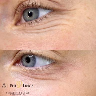 Rundt øyepartiet