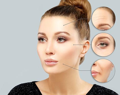 Beautiful results of Botox treatments