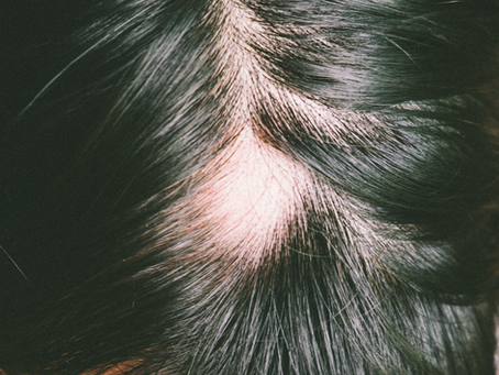 8 Reasons your Hair is Thinning & How to Fix it.
