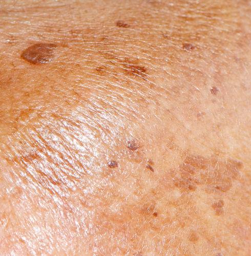 skin-condition-hyperpigmentation.jpg