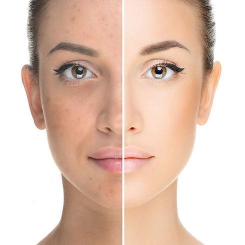 prp-treatment-for-skin-whitening.jpg