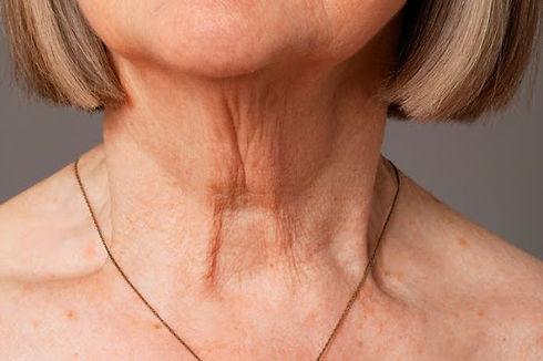 aging neck.jpg