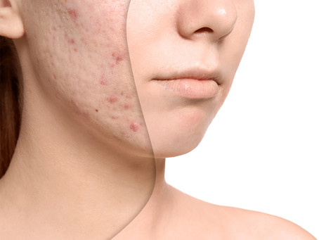 Let's Talk About Acne