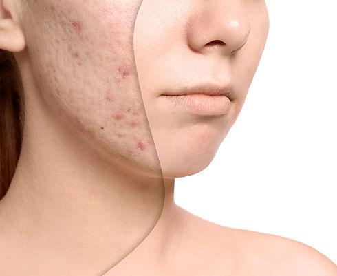 -acne-.jpg