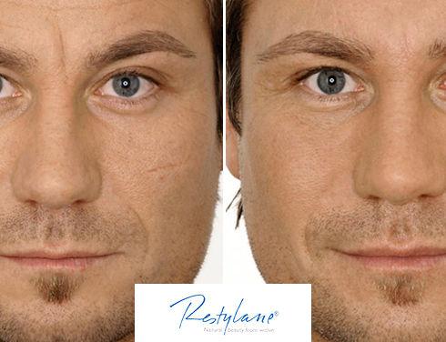 img-treatments-facial-fillers-men-restyl
