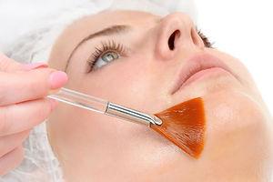 facial-peels (1).jpg