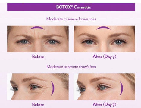 botox-before-after-treatment.jpg