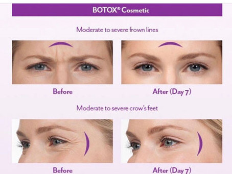 What is a BOTOX® Treatment?