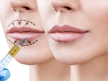 Dermal Fillers and the Moderna Vaccine