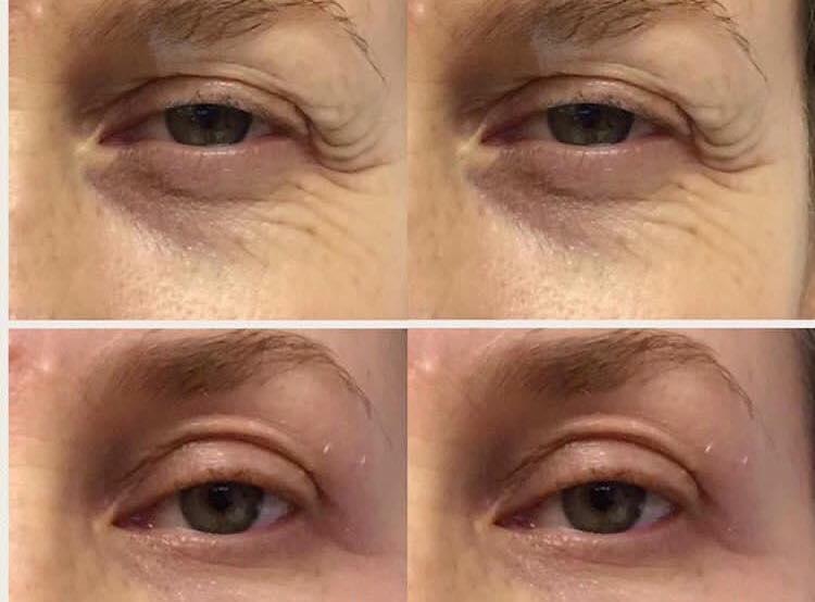 Tunge øyelokk og fine linjer