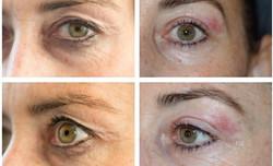 Øyelokk