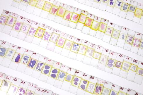 Conjunto de lâminas com preparados histológicos  para leitura.