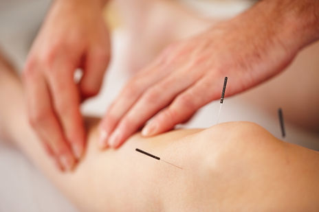 Acupuncture-Joint-Pain.jpg