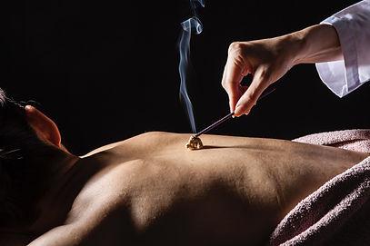 AcupunctureMoxibustion2-1024x683.jpg