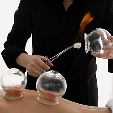 The Health Benefits of Cupping