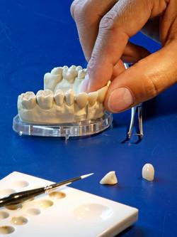 seating of a dental inlay