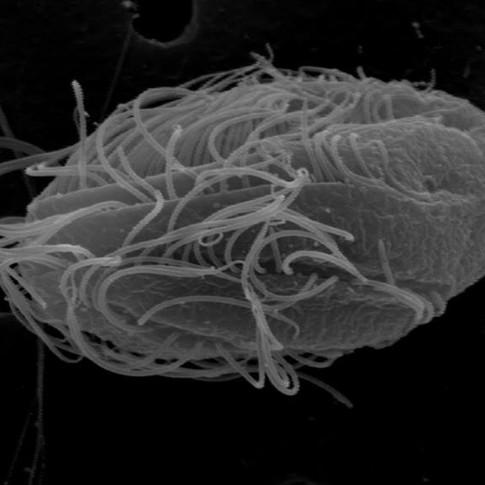 anaerobic ciliate from the subclass Scuticociliatia (Oligohymenophorea)
