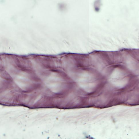 Leptospironympha sp.