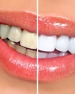 teeth-whitening-in-Rockingham.jpg