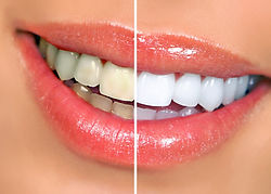 teeth-whitening-in-Rockingham.jpg