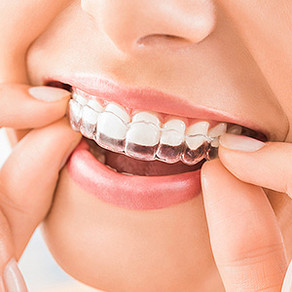 How Long Should I Wear My Retainer?