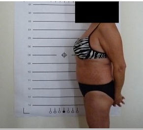 Lipo Light Fat Reduction Reduced 2cm after one session  NYC Ease Medspa