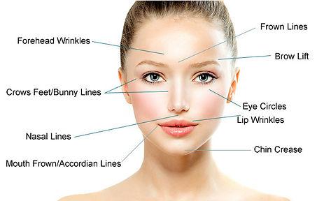 acupuncture facial.jpg