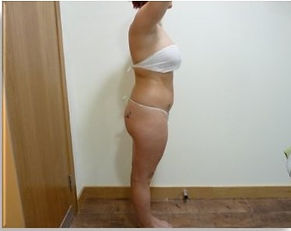 Lipo Light Fat Reduction lost 4cm after 2x30min sessions NYC Ease Medspa