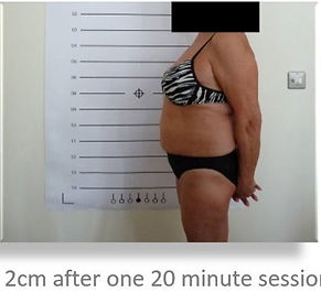 Lipo Light Fat Reduction lose 2cm after One treatment NYC Ease Medspa