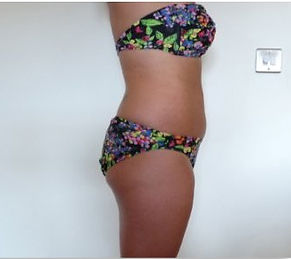 Lipo Light Fat Reduction|Reduced 2.5cm after one session|NYC Ease Medspa