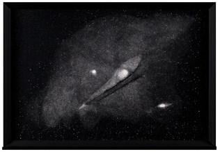 Dust ( Andromeda Nebula )