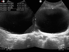 Bladder volume in Cauda Equina syndrome