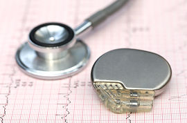 Close up of electrocardiograph with stet