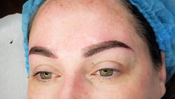 brow 3