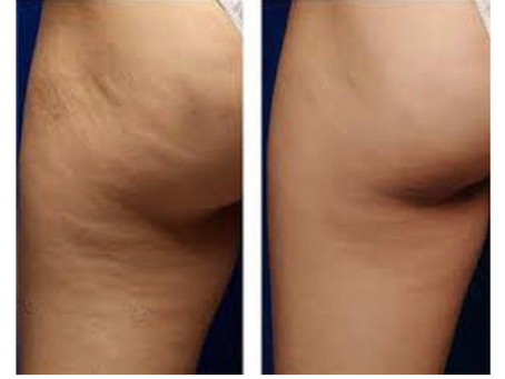 Receive $450.00 OFF Cellulite Treatment in December!!!