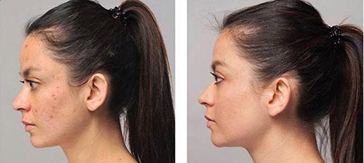 acne corrective facial