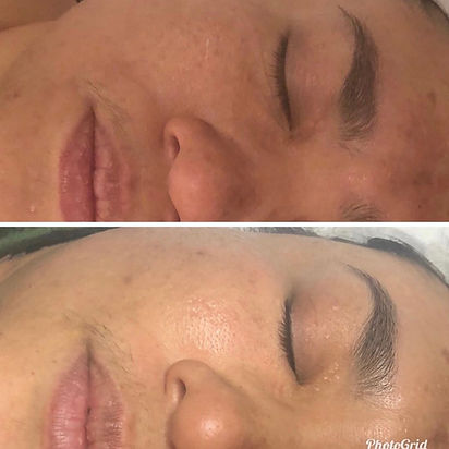 advanced peel treatments