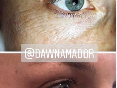 Amazing Results with Plasmafibroblast Skin Tightening Eye Lift!!!