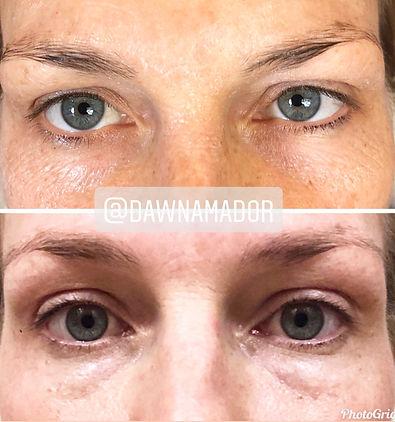plasma fibroblast eyelift
