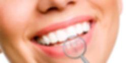 implantologia-dentale.jpg