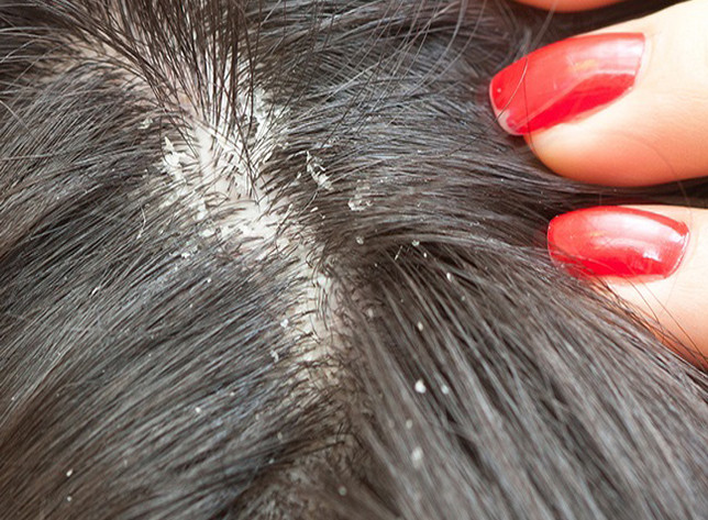 nits vs. dandruff: how to tell the difference | lice care, Skeleton