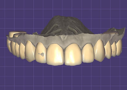 frontal 2.jpg