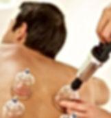 Ventosaterapia_acupuntura