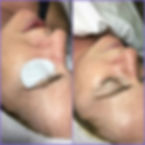 Oxygen Facial!!!-fantastic result from o
