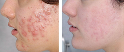 Acne before after 21.7.17