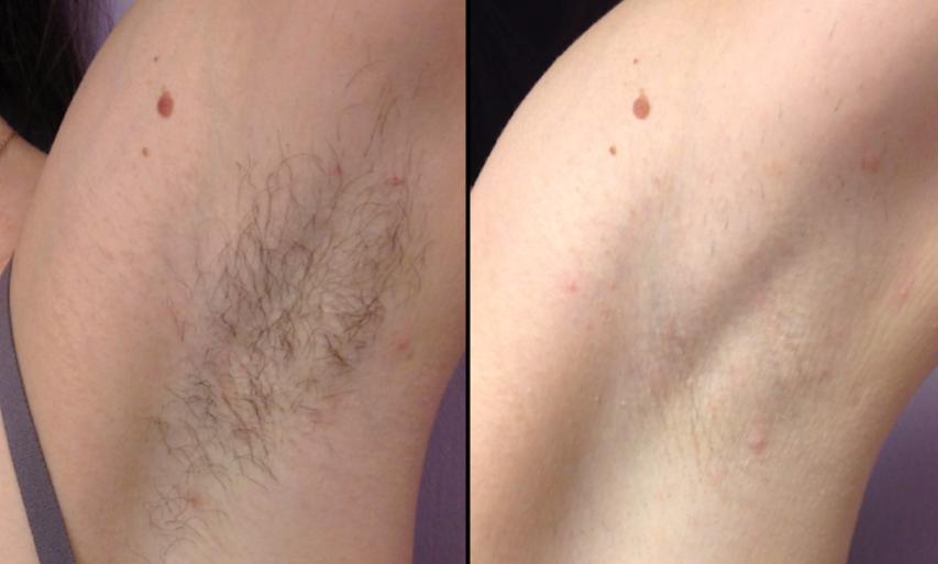 SHR Hair removal 5.6.16