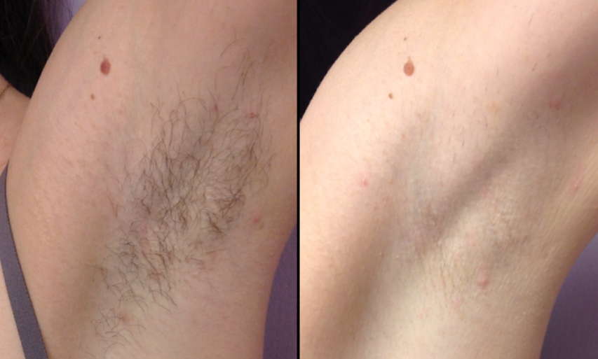SHR Hair removal 5.6.16.png