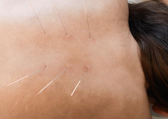 Βελονισμός για αντιμετώπιση πόνου στη σπονδυλική στήλη / Acupuncture for spinal pain