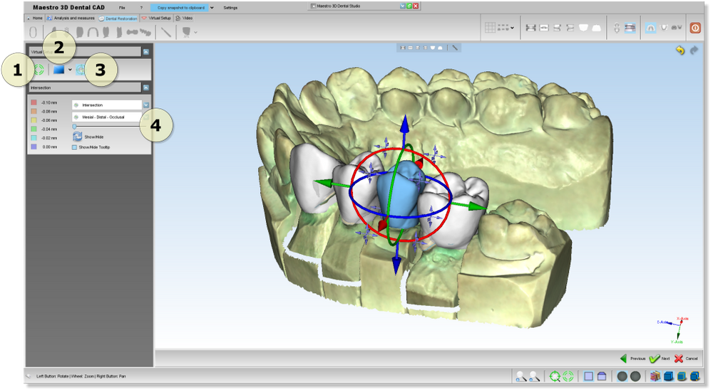 Dental CAD or CAM Materials and Systems Market Global Size, Trends and Research Analysis to 2030